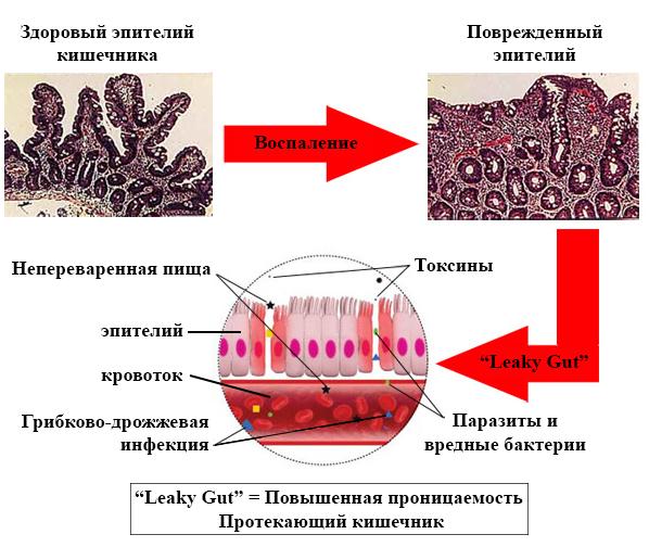 Возможные последствия чувствительности (скрытой аллергии) к глютену